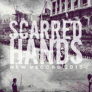 Scarred Hands