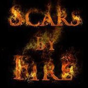 Scars by Fire
